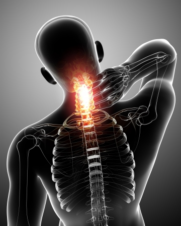 x-ray of spine pain in gray Stock Photo