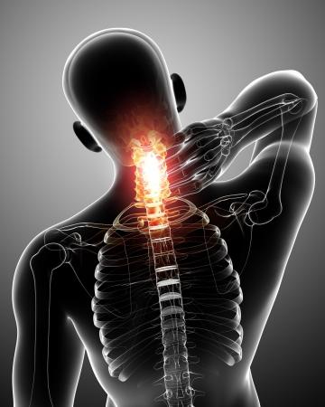 Rayons X de la douleur rachis en gris Banque d'images - 13757754