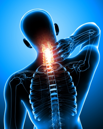 woman back of head: spine pain in blue Stock Photo