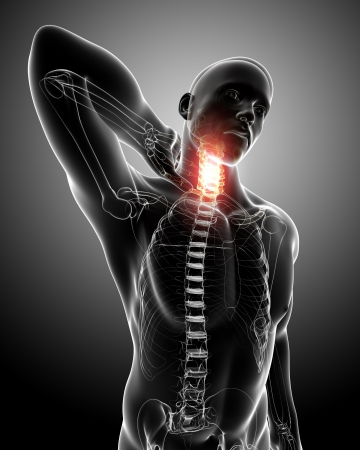Front x-ray of spine pain photo