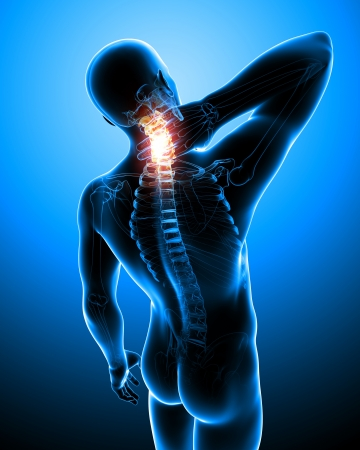 x-ray illustration of spine pain illustration