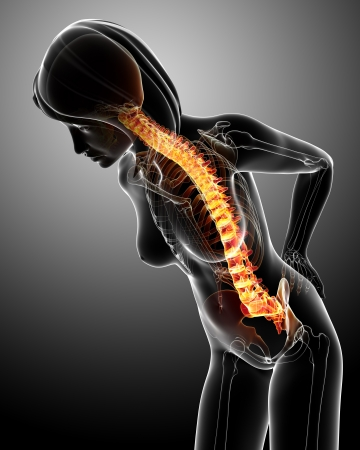 suffer: female back pain in blue Stock Photo