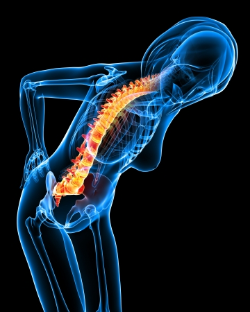 sore muscles: X-ray of back pain Stock Photo