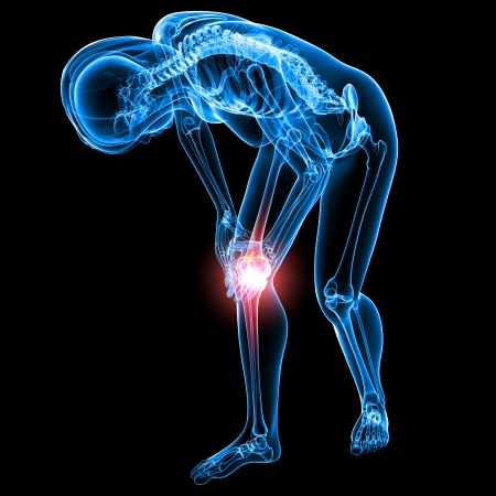 X-ray of Knee pain in black Stock Photo - 13757767