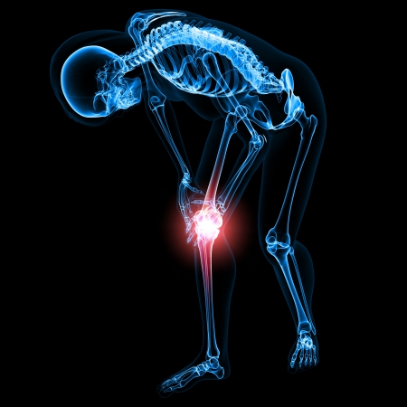 skeleton: Skeleton of Knee pain in black Stock Photo