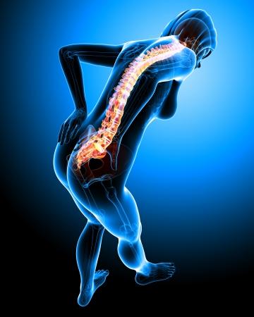 backache: back pain of female