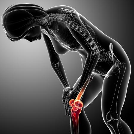 de rodillas: Radiografía del dolor en la rodilla femenina Foto de archivo