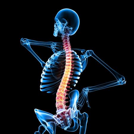 dolor  muscular: El dolor de la m�dula espinal