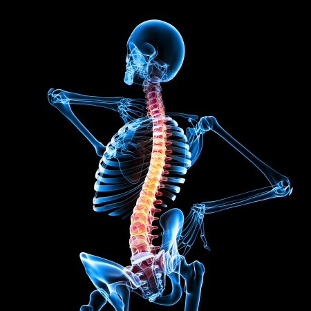 woman pain: Pain of spinal cord