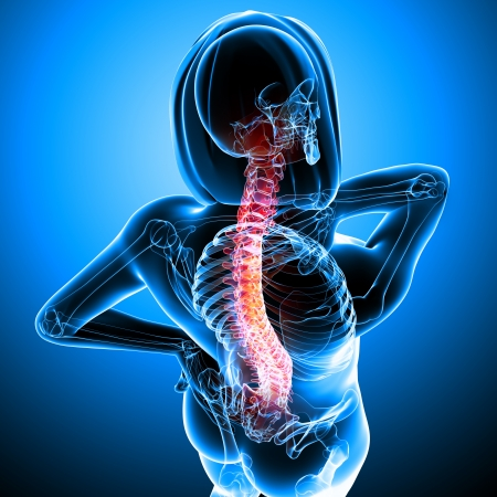 Spine pain in blue background with body X-ray photo