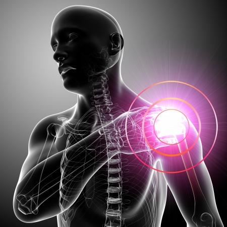 Xray Pijn in de schouder van de man in grijs Stockfoto