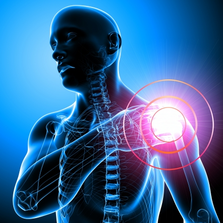 Pijn in de schouder van de man in blauw Stockfoto