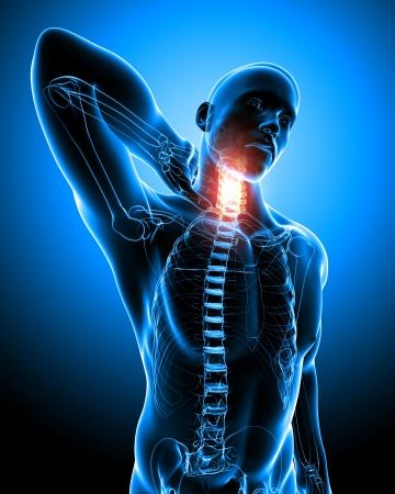 the neck: Anatomia del dolore al collo in blu