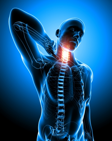 xray: Anatomy of Neck pain in blue Stock Photo