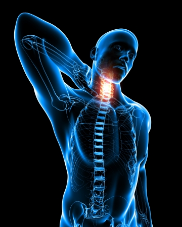 shoulder problem: Anatomy of Neck pain