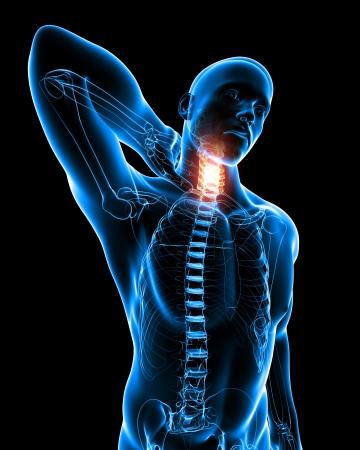 anatomy skeletal: Anatomy of Neck pain