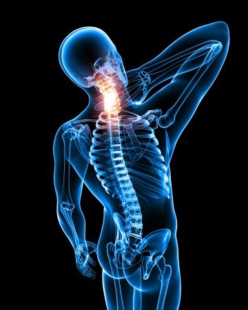 epaule douleur: X-ray Anatomie de la douleur du cou en noir Banque d'images