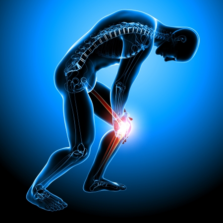 아픈: 남성의 무릎 통증의 해부학