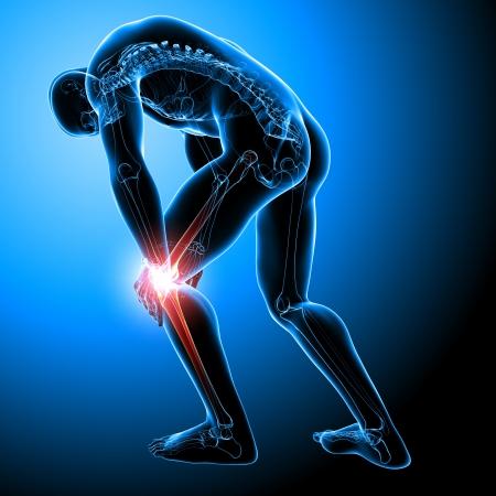 de rodillas: Anatomía del dolor de rodilla masculina en azul Foto de archivo