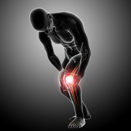 artrite: X-ray Anatomia del dolore al ginocchio grigia Archivio Fotografico