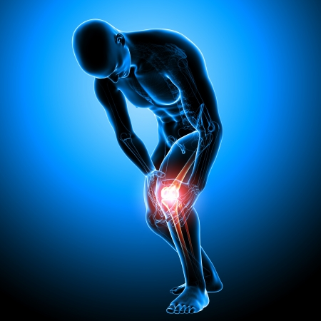 X-ray Anatomy of male knee pain Stock Photo - 13757781