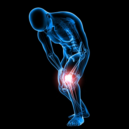 knee pain  photo