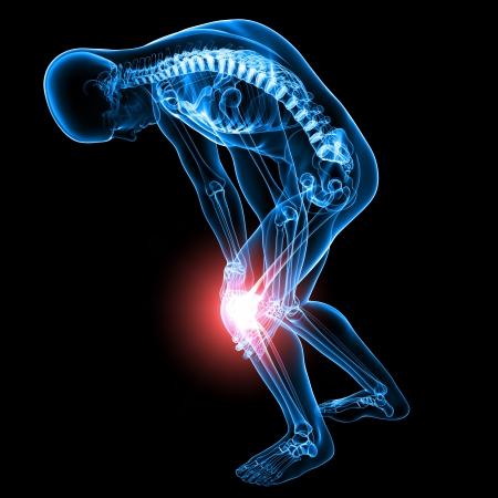 de rodillas: De rayos-X Anatomía del dolor de rodilla masculina Foto de archivo