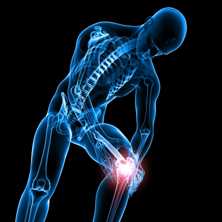 osteoporosis: De rayos-X Anatom�a del dolor de rodilla masculina Foto de archivo
