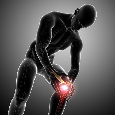 아픈: 회색 남성 무릎 통증의 해부학 스톡 사진