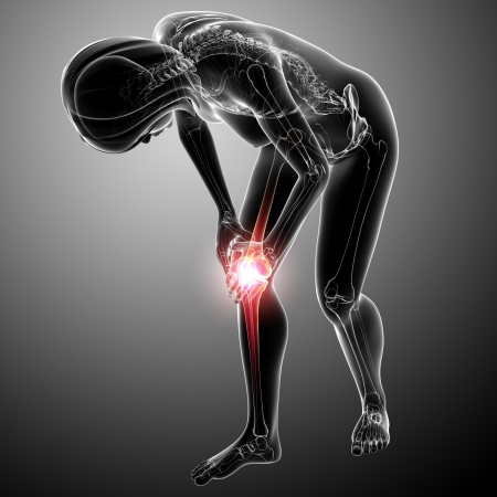 Female knee pain  photo