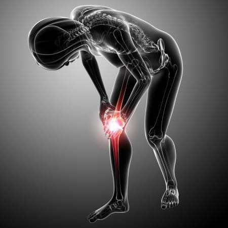 Female knee pain  photo