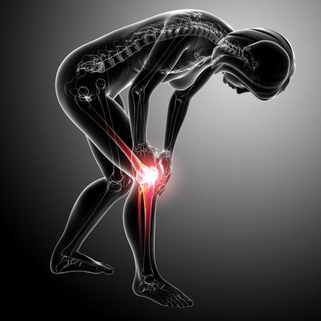 Anatomy of female knee pain in gray photo