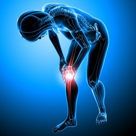 Anatomía del dolor de la rodilla femenina