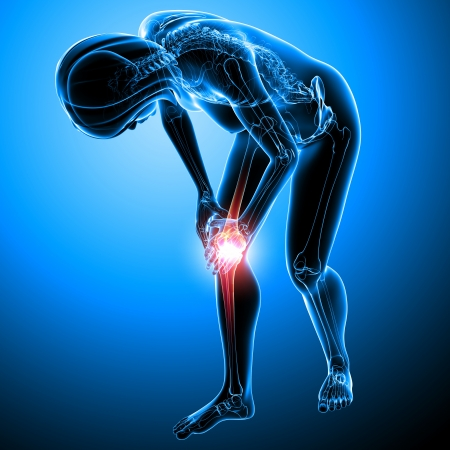 osteoporosis: Anatomía del dolor de la rodilla femenina