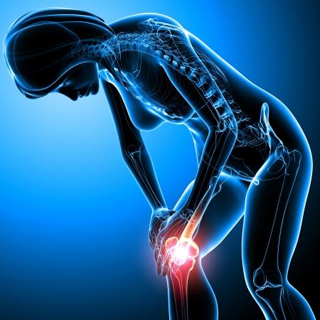 articulaciones: De rayos-X Anatomía del dolor de rodilla femenina Foto de archivo