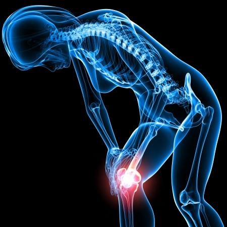 dolore al ginocchio in nero