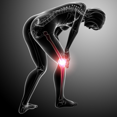 painful: full body female knee pain in gray