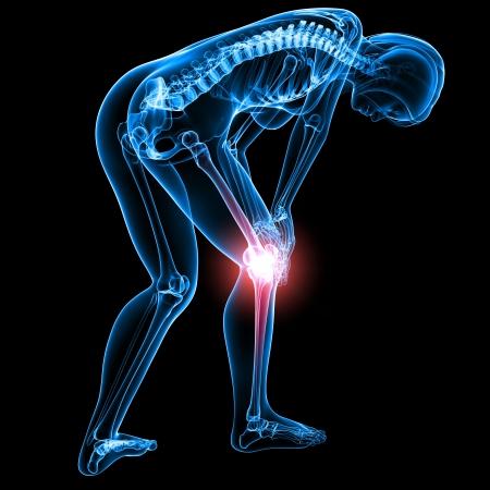 full body female knee pain in black Stock Photo - 13757780