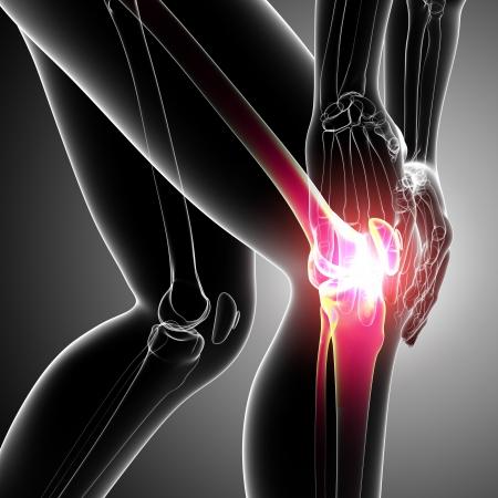 artritis: Anatomía del dolor de la rodilla femenina en grayAnatomy de dolor de rodilla femenina en gris