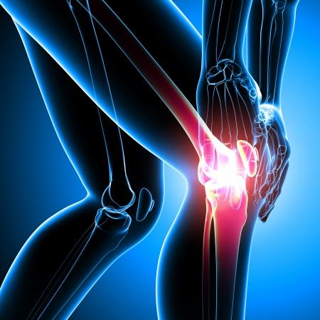 dolor de rodilla: dolor en la rodilla femenina Foto de archivo