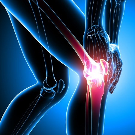 painful: female knee pain