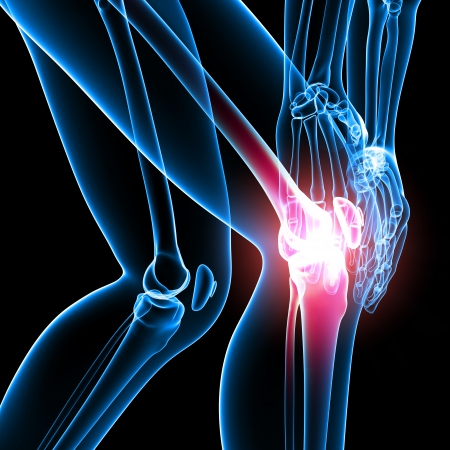painful: X-ray of female knee pain in black Stock Photo