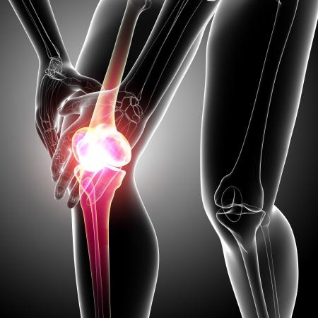 dolor de rodilla: Radiograf�a del dolor en la rodilla femenina Foto de archivo