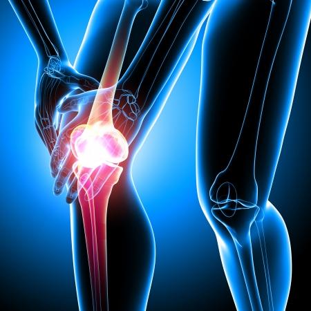 artritis: Anatomía del dolor de la rodilla femenina