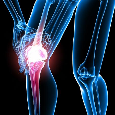 painful: X-ray Anatomy of female knee pain  Stock Photo