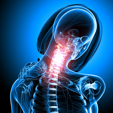 neck pain of female in blue Stock Photo - 13757920