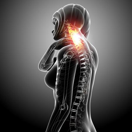 neck pain of female Stock Photo - 13757812