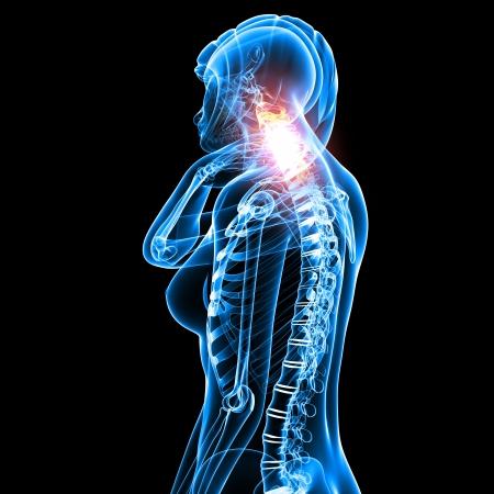 female neck pain in black Stock Photo - 13757811