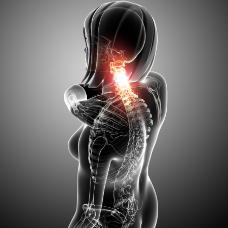 female neck pain in gray Stock Photo - 13757924