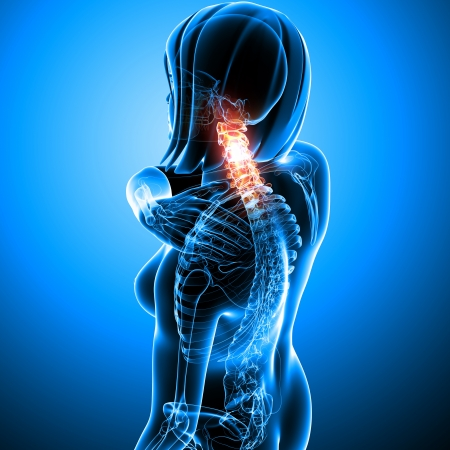 Anatomy of female acneck pain  Stock Photo - 13757917